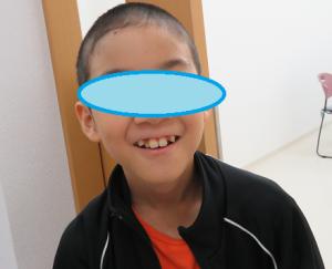 坊主頭の児童の写真